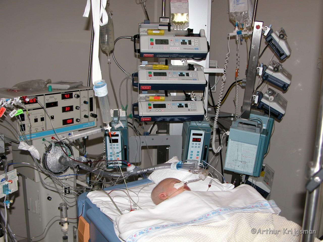 Baby aan de beademing en medicijnen na een open hart operatie.